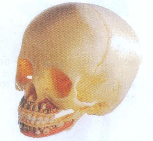 gd/a11114-儿童头颅骨模型-上海真康医疗科技有限